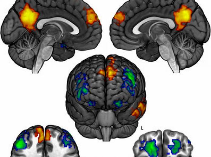 Cerveau et politique